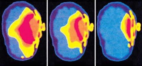 vpliv sevanja na mozgane