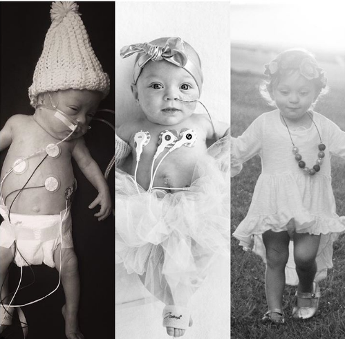 Fotografije koje pokazuju bol roditelja prerano rođene djece